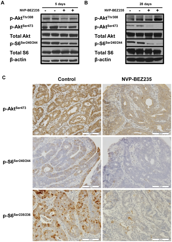 In vivo NVP-BEZ235 treatment of a GEM model for sporadic CRC results in transient PI3K blockade inhibition and sustained mTORC1/mTORC2 blockade. Mice with colonic tumors were randomized to treatment with control diluent or 45 mg/kg NVP-BEZ235 by daily oral gavage for five days. Western blot analysis of p-AKT Thr308 , p-AKT Ser473 , and p-S6 Ser240/244 was performed for tumors treated with (−) control diluent or (+) NVP-BEZ235 for (A) five and (B) 28 days. (C) Immunohistochemistry of p-AKT Ser473 , p-S6 Ser240/244 , and p-S6 Ser235/236 was performed for tumors treated with control diluent or NVP-BEZ235 for 28 days.