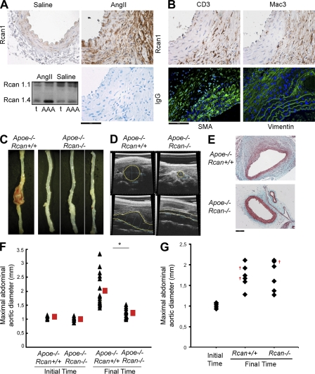 Rcan1 mediates AngII-induced AAA. Apoe −/− Rcan1 +/+ or Apoe −/− Rcan1 −/− mice were minipump infused with 1 µg/kg/min AngII for 28 d. (A) Rcan1 immunostaining (top) of abdominal aortic cross sections from saline- and AngII-treated Apoe −/− Rcan1 +/+ mice. IgG-staining serves as negative control. Rcan1-4 immunoblot of thoracic aorta (t) and the AAA segment of Apoe −/− Rcan1 +/+ mice are shown. Bar, 50 µm. (B) CD3, Mac3, SMA, and vimentin immunostaining of abdominal aortic cross sections from AngII-treated Apoe −/− Rcan1 +/+ mice. Bar, 50 µm. (A and B) Representative experiments are shown of four performed. (C) Abdominal aortas from AngII-treated mice. (D) Ultrasound images of abdominal aortas from AngII-infused animals. Transverse (top) and longitudinal (bottom) images were taken at the level of the suprarenal aorta. Yellow lines mark lumen boundary. (E) Suprarenal abdominal aorta cross sections stained with Masson's trichrome. Bar, 100 µm. (C–E) Representative experiments are shown of 15–16 performed. (F and G) Maximum suprarenal abdominal aortic diameter (in millimeters) in AngII-treated mice measured at treatment start and treatment finish. (F) Triangles and squares represent individual mice and means ± SEM from Apoe −/− Rcan1 +/+ mice ( n = 16) and Apoe −/− Rcan1 −/− mice ( n = 15), respectively. *, P
