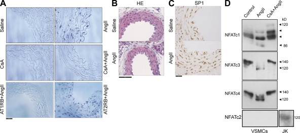 AngII activates the CN–NFAT pathway in VSMCs in vivo. (A–C) Mice were inoculated with 5 mg/kg/d CsA, 10 mg/kg/d of the AngII type 1 receptor (AT 1 ) blocker losartan, or 30 mg/kg/d of the AngII type 2 receptor (AT 2 ) blocker PD123319 by subcutaneous osmotic minipump infusion for 24 h before similar administration of 1 µg/kg/min AngII for 1 h. Aortic sections from these mice were analyzed by Southwestern histochemistry with NFAT probe (A), hematoxylin-eosin (HE) staining (B), and Sp1 immunohistochemistry (C). Bars, 50 µm. (D) NFAT immunoblot in extracts from VSMCs stimulated with 1 µM AngII for 1 h after pretreatment as indicated (1 h) with 200 ng/ml CsA. Arrowheads indicate NFAT proteins with different degrees of phosphorylation. NFATc2 was tested in parallel protein extracts of Jurkat cells (JK). Representative experiments are shown of four to six performed.