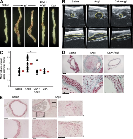 CsA inhibits development of AngII-induced AAA. Apoe −/− mice were minipump infused with 5 mg/kg/d CsA, 1 d before commencing similar administration with saline or 1 µg/kg/min AngII for 28 d. (A) Representative abdominal aortas of Apoe −/− mice treated as indicated. (B) Representative high-frequency ultrasound (US) images of abdominal aortas. Transverse (top) and longitudinal (bottom) images were taken at the level of the suprarenal aorta. Yellow lines mark the lumen boundary. (C) Maximum suprarenal abdominal aortic diameter (in millimeters) measured from transverse US images. Triangles and squares represent individual mice and means ± SEM, respectively. Numbers of mice per group were 9 saline, 24 AngII, 9 CsA+AngII, and 7 CsA. *, P