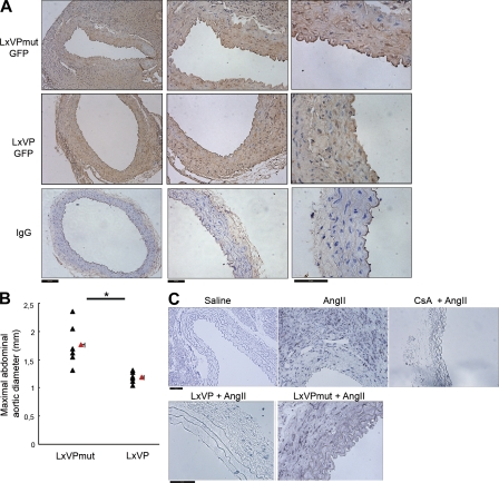 Systemic delivery of LxVP lentivirus inhibits development of AngII-induced AAA. (A) Mice were inoculated with lentivirus expressing GFP-tagged LxVP or LxVPmutant 100 µl virus solution (10 11 particles in 100 µl) injected directly into the right jugular vein 1 mo before staining of aortic sections. (A) GFP immunostaining in aortic sections. IgG staining serves as a negative control. Bars: 100 µm (left); 50 µm (middle and right). A representative experiment is shown of six performed in independent mice. (B) Apoe −/− mice were inoculated with lentivirus expressing GFP-tagged LxVP or LxVPmutant 1 mo before minipump-infusion of 1 µg/kg/min AngII for 28 d. Maximum suprarenal abdominal aortic diameter (in millimeters) is shown. Triangles and squares represent individual mice and means ± SEM from six mice per condition, respectively. *, P
