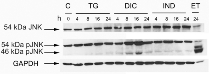 Phosphorylation level of the JNK protein in the response to thapsigargin (TG) diclofenac (DIC) and indomethacin (IND) in Huh7 cells . Western blot analysis of cell extracts obtained from Huh7 cells exposed to TG, DIC or to IND for the times indicated. Etopoxide was used as positive control for the JNK protein phosphorylation. The blots were probed with antibodies against the unphosphorylated (JNK) or phosphorylated (pJNK) JNK proteins.