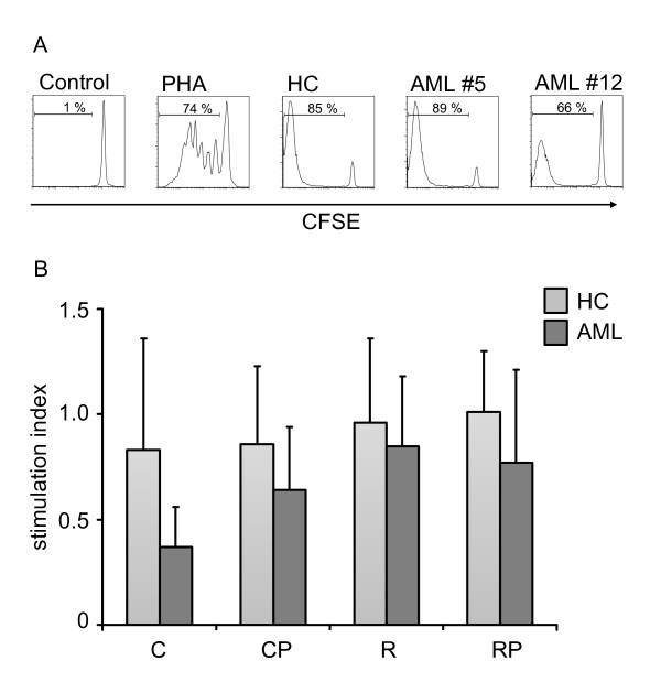 Activation of allogeneic T cells by DCs . PBMCs from healthy unrelated donors were stained with CFSE and cocultured with DCs at a ratio of 10:1. After 6 days, proliferation was assessed by flow cytometry. (A) Representative examples of unstimulated cells and proliferating cells are shown in the presence of PHA (3 μg/mL) and after coculture with DCs generated from HCs and two AML patients (AML #5, AML #12). (B) Stimulation index of DCs generated from HCs and AML patients with cocktail C, CP, R, and RP (n = 3-9) are summarized as mean ± SD.