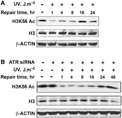 H3K56 deacetylation and acetylation is not regulated by <t>ATR</t> checkpoint kinase. ( A ) Seckel cells are proficient in the deacetylation and restoration of H3K56 acetylation in response to UV irradiation. Seckel cells were exposed to 10 J m −2 UV radiation and were harvested at the indicated times. Whole cell lysates prepared from the cells were resolved on SDS–PAGE and H3K56 acetylation levels determined by western blotting. ( B ) ATR deficiency does not affect either the deacetylation or restoration of H3K56 acetylation in response to UV irradiation. HeLa cells were transfected with 100 nM ATR <t>siRNA</t> using Lipofectamine tansfection reagent. At 48 h after transfection, cells were irradiated with 10 J m −2 UV and harvested at the indicated times. Whole-cell lysates were prepared, resolved on SDS–PAGE and H3K56Ac levels determined by western blotting with anti-H3K56Ac antibodies.