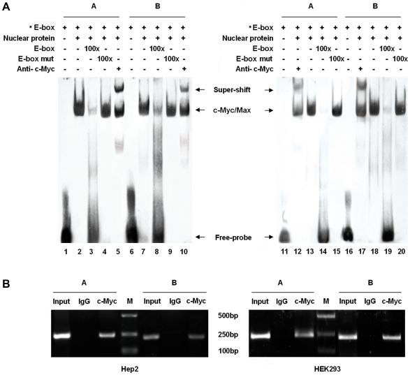 """A role for E-box sites in basal human MTCT1-TV promoter activity. A. Binding of MYCT1-TV E-box sites to c-Myc in vitro detected by EMSAs. The symbol """" * """" means the oligonucleotides labled by biotin. Lanes 1 to 10 stand for the results from Hep2 cells and Lanes 11 to 20 the results from HEK293 cells. Lanes 1, 6, 11 and 16 represent biotin-labled oligonucleotides. Lanes 2, 7, 13 and 18 represent each probe incubated with nuclear extracts. Lanes 3, 8, 14 and 19 represent each probe incubated with a 100-fold excess of the unlabeled competitor oligonucleotides. Lanes 4, 9, 15 and 20 represent each probe incubated with a 100-fold excess of the unlabeled mutant competitor oligonucleotides. Lanes 5, 10, 12 and 17 represent the EMSA results in the presence of anti-c-Myc antibody. The experiments were repeated three times. B. Binding of E-box sites to c-Myc in vivo detected by ChIP. The Input lanes correspond to PCR products derived from chromatin prior to immunoprecipitation. The IgG lanes correspond to PCR products containing chromatin immunoprecipitated with antibodies against control IgG. The c-Myc lanes correspond to PCR products containing chromatin immunoprecipitated with antibodies against c-Myc. M indicates DNA 2000 marker. The 242 bp PCR product of c-Myc A or the 215 bp PCR product of c-Myc B is obtained corresponding to the sequence either E-box A or B binding site of the MYCT1-TV promoter. Results of Hep2 cells shown in the left figure are in line with those of HEK293 cells in the right one."""