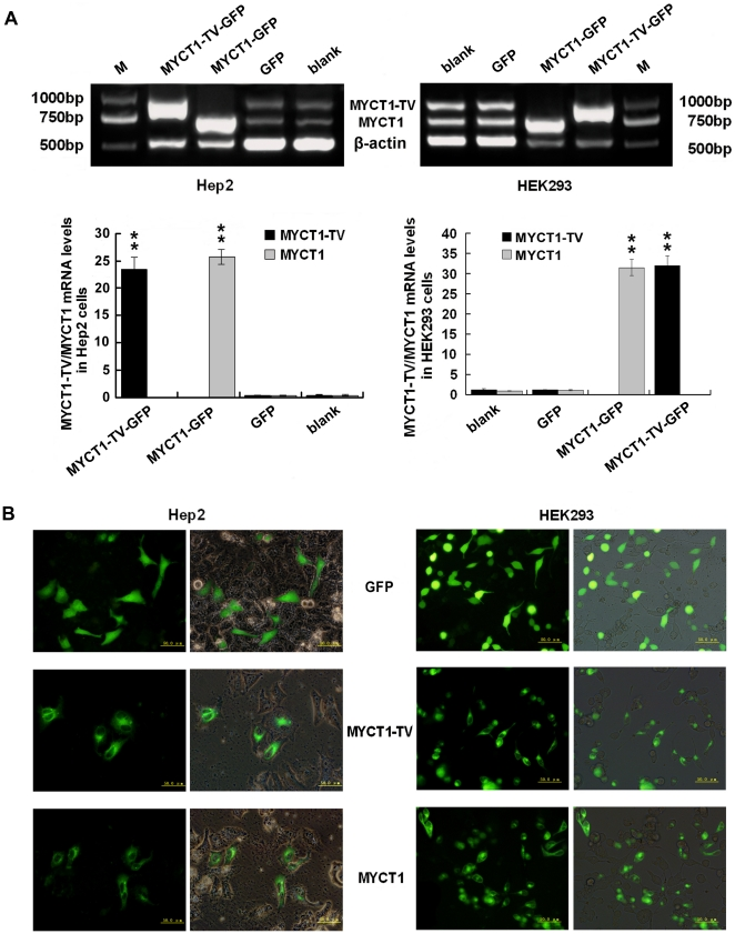 Transfection of MYCT1-TV and MYCT1 in Hep2 and HEK293 cells. A. mRNA levels of MYCT1-TV/MYCT1 in Hep2 and HEK293 cells transfected with MYCT1-TV-GFP/MYCT1-GFP. PCR produce a 929 bp DNA fragment for MYCT1-TV , a 726 bp DNA fragment for MYCT1 and a 511 bp DNA fragment for β-actin. In Hep2 cells, the gray-scale ratios of MYCT1-TV to β-actin mRNA levels (black bars) in blank, GFP and MYCT1-TV-GFP groups are 0.4735±0.0335, 0.4315±0.0303 and 23.5188±2.0896, and the gray-scale ratios of MYCT1 to β-actin mRNA levels (gray bars) in blank, GFP and MYCT1-GFP groups are 0.4157±0.1080, 0.4242±0.0658 and 25.7520±1.3244, respectively. In HEK293 cells, the counterpart gray-scale ratios of MYCT1-TV to β-actin mRNA levels are 1.3071±0.2223, 1.2523±0.1002 and 32.0339±2.2903, and the counterpart gray-scale ratios of MYCT1 to β-actin mRNA levels are 0.9950±0.0725, 1.1448±0.1346 and 31.5161±1.9808, respectively. B. Transfection efficiency and expression of MYCT1-TV/MYCT1 protein in Hep2 and HEK293 cells. Transfection efficiency and expression of MYCT1-TV/MYCT1 protein in GFP, MYCT1-TV-GFP and MYCT1-GFP groups are revealed by contrast and fluorescence microscopy under the same phase. M, DNA marker; blank, control cells before transfection; GFP, control cells after transfection with GFP only; MYCT1-TV-GFP, cells transfected with MYCT1-TV-GFP; MYCT1-GFP, cells transfected with MYCT1-GFP (**, p