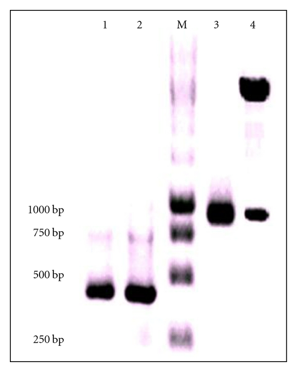 Agarose gel electrophoresis analysis of PCR-amplified products from immunized splenocytes. Lane M shows the DNA ladder and Lanes 1, 2, and 3 show the variable heavy, variable light chain genes, and assembled PCR products, respectively. Lane 4 is the recombinant expression cassette after Nco I and Not I digestion showing release of scFv product.