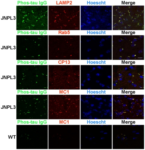 FITC labeled IgG from a high titer mouse co-localizes with phosphorylated and pathological tau within the endosomal/lysosomal system . Confocal microscope images of brain slice sections from JNPL3 transgenic mice and WT (bottom panel) mice. Slices were incubated with FITC–IgG from a high titer Tau 379–408[pSer 396, 404 ] immunized mouse (green) and after sectioning co-stained with an antibody to LAMP2 (red), a marker of late endosomes/lysosomes, and an antibody to Rab5 (red), a marker of early endosomes and the nuclear stain Hoechst 33342. The merged images indicate areas of co-localization between FITC–IgG and endosomes and lysosomes (orange/yellow), mostly in perinuclear areas. Slices were also co-stained with an antibody to MC1 (red), which recognizes a disease related conformational tau epitope and CP13 (red) which recognizes tau pSer202. The merged images indicate areas of co-localization between FITC–IgG and pathological tau (yellow), mostly in perinuclear areas. Minimal staining was observed in the WT mouse. Scale bar = 10 μm.