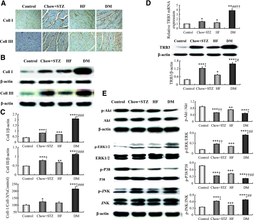 Diabetes increases collagen I (coll I) and collagen III (coll III) content, suppresses Akt phosphorylation, and partly activates TRB3/MAPK pathway. A : Representative immunohistochemical staining of collagen I and III (brown staining considered positive staining; scale bar: 50 μm). B : Representative Western blot of collagen I and III content. C : Western blot analysis of collagen I, collagen III, and collagen I-to-III ratio. D : Relative mRNA expression and protein content of myocardial TRB3. E : Western blot analysis of p-Akt/Akt, p-ERK/ERK, p-p38/p38, and p-JNK/JNK. Data are mean ± SEM. * P