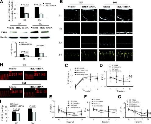 TRB3 gene therapy improves cardiac function in diabetic (DM) rats. A : Relative mRNA expression and protein content of myocardial TRB3 in gene-silencing groups. B : Representative echocardiograms. C – G : Sequential evaluations of left ventricular end diastolic diameter (LVEDd) ( C ), FS ( D ), LVEF ( E ), E/A ( F ), and E′/A′ ( G ). H : Pressure curves of cardiac catheterization. I : Analysis of LVEDP with TRB3-siRNA silencing. Data are mean ± SEM; n = 7–10 per group. § P