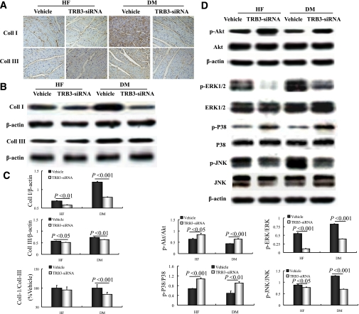 TRB3 gene silencing decreases collagen expression, restores the phosphorylation of p-Akt, and partly reverses MAPK activation. A : Representative immunohistochemical staining showing collagen I and III (scale bar: 50 μm). B : Representative Western blot of collagen I and III. C : Western blot analyses of collagen I and III content and collagen I-to-III ratio. D : Western blot analysis of p-Akt/Akt, p-ERK/ERK, p-p38/p38MAPK, and p-JNK/JNK. Data are mean ± SEM. DM, diabetic rats. (A high-quality digital representation of this figure is available in the online issue.)