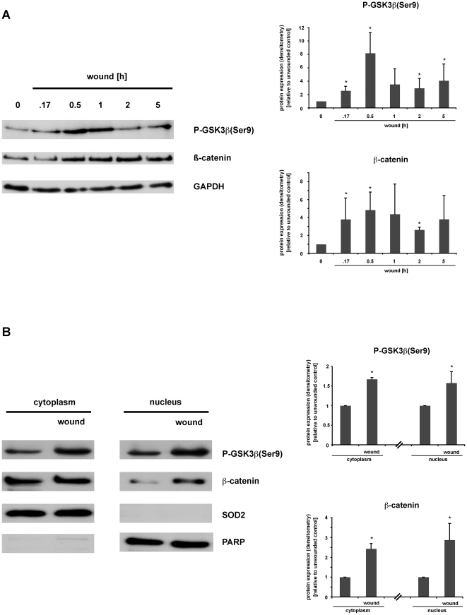 Wounding induces GSK3ß(Ser9) phosphorylation, ß-catenin accumulation and nuclear translocation in IEC18 cell monolayers. Rat intestinal epithelial IEC18 cells were grown to confluency in 6-well-plates, serum-starved overnight, and cell monolayers were then wounded by multiple scraping. (A) At the indicated time points, total cell protein extracts were prepared and analysed for GSK3ß signaling pathway activation via Western blot. (B) 30 minutes after wounding, cells were lysed, subcellular fractions of nuclear/cytoplasmic protein were prepared and analysed for phospho-GSK3ß(Ser9) and ß-catenin accumulation via Western blot. (A,B) Densitometry was performed on n = 3–4 different Western blots (each representative of an independent experiment) per condition and normalized to the respective loading controls (GAPDH, SOD, PARP). Protein expression is expressed as -fold protein induction relative to the respective unwounded control. Data are expressed as means ± S.D. of 3–4 different experiments per condition. Statistical analysis was performed by the two-tailed Student's t test (*p