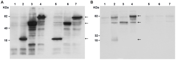 Western blots of whole-cell extract (a) and culture supernatants (b) of BHK-21 cells transfected with the different DNA vaccines. The recombinant proteins were detected in SDS-PAGE, using a mouse polyclonal antibody against the DENV2 NS3, harvested from transfections with pcTPA (lane 1), pcTPANS3P (lane 2), pcTPANS3H (lane 3), pcTPANS3 (lane 4), pcNS3P (lane 5), pcNS3H (lane 6) and pcNS3 (lane 7). Arrows indicate bands corresponding to the protease, helicase and full-length NS3 recombinant proteins.