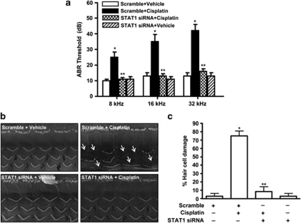 Cisplatin-induced hearing loss in rats is dependent on STAT1 activation. ( a ) ABR thresholds were recorded in Wistar rats treated with cisplatin (11 mg/kg, i.p.) for 72 h following 48 h trans-tympanic administration of scramble or STAT1 siRNA (0.9 μ g). ( b ) Scanning electron microscopic studies were performed on the cochleae. The representative image shows significant damage to OHCs (white arrows) by cisplatin, which is absent in the presence of STAT1 siRNA. ( c ) Quantitative analysis of the scanning electron micrographs. Data are presented as mean±S.E.M. The asterisks ( * ) and ( ** ) indicate statistically significant difference from the scramble or the scramble+cisplatin treatment group ( P