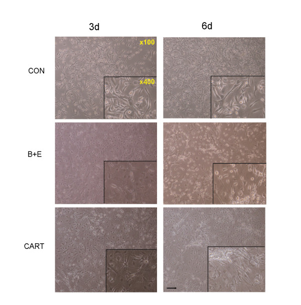 Morphological change of MSCs with or without the exposure to CART . Particular changes in morphology happened to MSCs with the exposure to CART. Similar to the situation of the bFGF/EGF-treated group, several MSCs incubated with CART for 3 days became shorter and nucleus-convergent. They subsequently evolved to display round cell bodies with long axons in 6 days. In the control group, mesenchmal stem cells nearly kept stable in the appearance within the 6 days of, observation (scale bar = 50 uM).