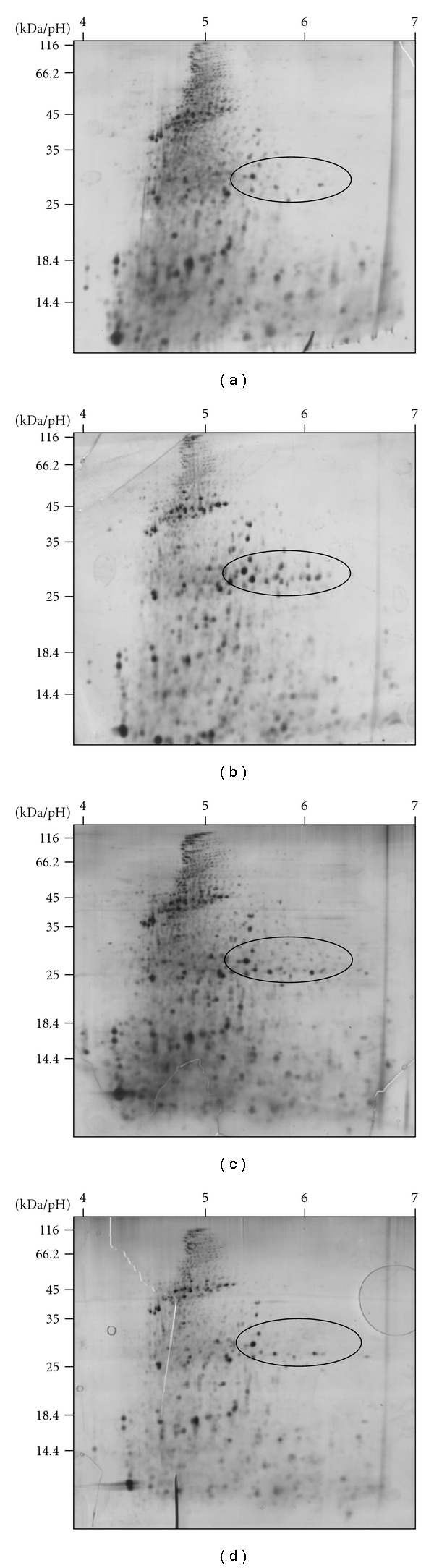2-DE gels from proteomics experiments: (a) control conditions, (b) EC 10 treatment with Rotenone, (c), EC 10 treatment with DNOC and (d) EC 10 treatment with Diclofenac. All protein samples were separated under the same 2-DE conditions: Immobiline strips pH 4–7 in the first and 14% PAA gels in the second dimension.