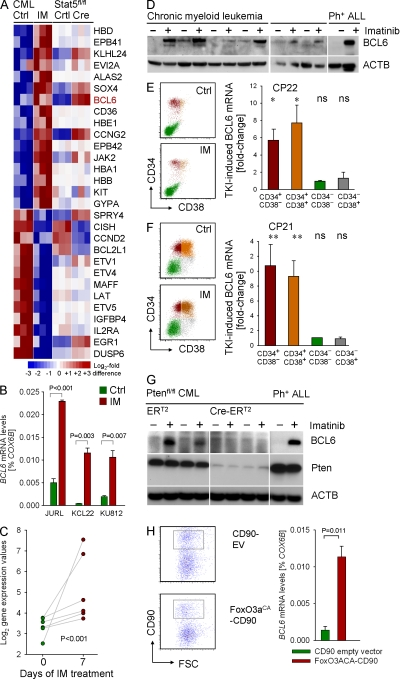 Regulation of BCL6 expression in CML cells. (A) To identify TKI-regulated genes in human CML cells, three human CML cell lines (KCL22, KU812, and JURL) were treated with (IM) or without (Ctrl) 1 μmol/liter Imatinib for 16 h and studied in an Affymetrix GeneChip analysis. Genes were sorted based on gene expression differences between TKI-treated and untreated CML cells. Likewise, BCR-ABL1 –transformed leukemia cells from Stat5 fl/fl bone marrow were transduced with Cre or an empty vector control. Gene expression values for Stat5 fl/fl (Ctrl) and Stat5-deleted (Cre) leukemia cells are indicated for the genes identified in TKI-treated cells. (B) Affymetrix GeneChip data for BCL6 was validated by quantitative RT-PCR on three cases of human CML (with or without 1 μmol/liter Imatinib overnight). (C) BCL6 gene expression values for CML cells from six patients before and after 7 d of Imatinib-treatment are shown (meta-analysis of data from Bruennert et al. [2009] ). (D) Human CML cells were treated with TKI (10 µM for 24 h) and BCL6 expression was evaluated by Western blotting using β-actin as a loading control. (E and F) Leukapheresis samples from two patients with CML-CP (CP21 and CP22) were sorted into four subpopulations based on CD34 and CD38 surface expression as depicted in the flow cytometry dot plots. Subpopulations were incubated overnight in the presence and absence of 10 µmol/liter Imatinib and then subjected to quantitative RT-PCR for BCL6 mRNA levels using COX6B as a reference gene. For each subpopulation, fold-induction of BCL6 mRNA levels are shown (triplicate measurements were performed; *, P