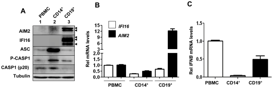 Expression of the IFI16 and AIM2 proteins is cell type dependent. ( A ) Total cell extracts containing equal amounts of proteins from peripheral blood mononuclear cells (PBMNC), purified monocytes <t>(CD14</t> + ), or B lymphocytes (CD19 + ) were analyzed by immunoblotting using antibodies specific to the indicated proteins. The arrowheads indicate different forms of the AIM2 (53 and 49 kDa) and IFI16 (A, B, and C forms) proteins. ( B ) Total RNA was extracted from total PBMNCs, purified CD14 + or CD19 + cells. Steady state levels of the IFI16 or AIM2 mRNA were analyzed by quantitative TaqMan real-time PCR. The ratio of the test gene to actin mRNA was calculated in units (one unit being the ratio of the test gene to actin mRNA). Results are mean values of triplicate experiments and error bars represent standard deviation. ( C ) Total RNA as described in panel ( B ) was also analyzed by the quantitative TaqMan real-time PCR for the IFN-β mRNA. Again, the ratio of the test gene to actin mRNA was calculated in units. Results are mean values of triplicate experiments and error bars represent standard deviation.