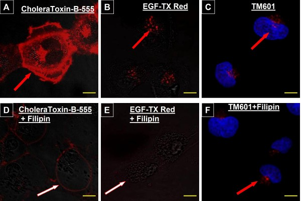 Effect of Filipin on uptake of TM601, CholeraToxin and EGF by glioma cells . Images of live U373 glioma cells treated with 1 μg/ml CholeraToxin B-555 (A, D), or 1 μg/ml EGF-TX-Red (B, E), or immunocytochemistry of U373 glioma treated with 10 μM TM601 (C, F) in presence or absence of filipin (5 μg/ml). There was no visible effect of filipin treatment on the level or pattern of staining for TM601, but EGF and cholera toxin staining was affected. Data are representative of total n = 4 - 5 experiments. Scale bars = 10 μm, magnification 1890 ×.