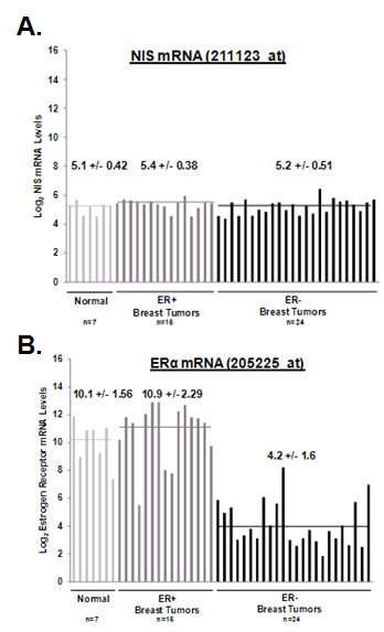 NIS mRNA levels detected by HG U133A oligonucleotide microarray (NIS probe set ID 211123_at) do not vary among breast tumors or normal breast tissue . The Gene Expression Omnibus dataset GSE3744 consists of normalized log 2 -transformed genome-wide expression of 7 normal breast tissues, 15 normal ER+ breast tumors and 24 ER- breast tumors. NIS and ER mRNA expression are plotted for each individual breast tissue sample and horizontal lines represent mean expression values among normal breast tissues ( light gray line ), ER+ breast tumors ( dark gray line ), and ER- breast tumors ( black line ). Mean ± standard deviation are also indicated. (A) NIS mRNA levels of breast tissues in the GSE3744 Gene Expression Omnibus dataset did not significantly vary among normal breast tissues (mean 5.1 ± 0.42, range 4.5-5.7), ER+ breast tumors (mean 5.4 ± 0.39, range 4.6-6.0) or ER- breast tumors (mean 5.2 ± 0.51, range 4.4-6.4). (B) In contrast, ER mRNA levels for normal breast tissues (mean 10.1 ± 1.56, light gray line ; range 7.4-11.9) and ER+ breast tumors (mean 10.9 ± 2.29, dark gray line ; range 5.5-13.9) were significantly greater than ER- tumors (mean 4.2 ± 1.6, black line ; range 1.9-8.2).