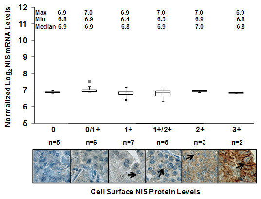 Cell surface NIS protein levels are more variable than corresponding NIS mRNA levels detected by oligonucleotide microarray . A human breast tumor TMA composed of 28 breast tumors with corresponding cDNA microarray data was immunostained with the p442 anti-hNIS antibody and each tumor was evaluated according to the level of cell surface NIS protein on a scale of 0, 0/1+, 1+, 1+/2+, 2+ and 3+. NIS mRNA levels detected by the 211123_at NIS probe set of the HG U133 Plus 2.0 Affymetrix microarray platform were examined and compared among breast tumors expressing each assigned level of cell surface NIS protein. Maximum, minimum and median NIS mRNA levels for each level of cell surface NIS are indicated. As shown by the box and whisker plot, there was no correlation between NIS mRNA and cell surface NIS protein among breast tumors. The length of the box represents the interquartile range (i.e., the middle 50% of the data). The median ( line through the middle of each box ), the lower quartile ( bottom line of each box ), and the upper quartile ( top line of each box ) are also specified on the plot for each level of cell surface NIS protein. The sample minimum and maximum values are represented as T-shaped lines extending from the ends of the box. Maximum outliers ( gray squares ) and minimum outliers ( black diamonds ) are also plotted. Representative images of breast tumors scored as 0 (18%, n = 5), 0/1+ (21%, n = 6), 1+ (25%, n = 7), 1+/2+ (18%, n = 5), 2+ (11%, n = 3) and 3+ (7%, n = 2) for cell surface NIS protein ( denoted by arrows ) are also shown (400×).