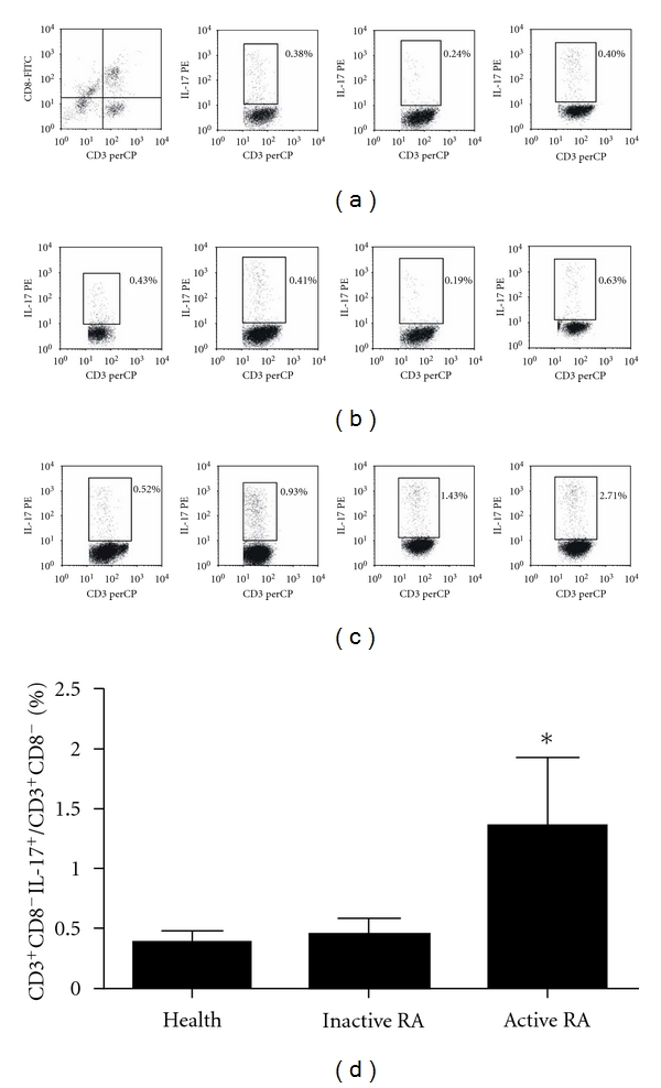 FACS analyzed the CD3 + CD8 − <t>IL-17</t> + cell ratio in RA patient The PBMCs were isolated by standard Ficoll-Hypaque density centrifugation. The cells were stained by anti-CD3-PE-cy5, <t>anti-CD8-FITC,</t> and anti-IL-17-PE. (a) First figure presented CD3 + CD8 − T cells were considered CD4 + T cells in region RL, and the other three were presented healthy controls. (b) Representative IL-17 expression in CD3 + CD8 − T subsets from RA patients in inactive phase. (c) Representative IL-17 expression in CD3 + CD8 − T subsets from RA patients in active phase. (d) The results were shown as means ± SD. *P