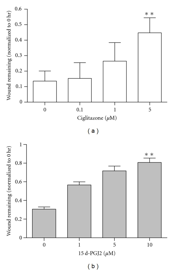 PPAR- γ ligands decrease wound closure in MCF-10A cells. Ciglitazone (a) and 15d-PGJ2 (b) were added to cells, and wound-induced closure measured as detailed under Section 2 . Data shown are the 12-hour time point + SD ( n = 3) ** P