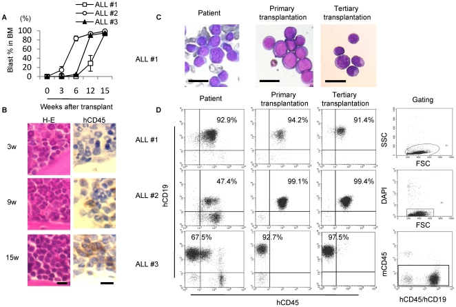 Leukemic cells can be engrafted to NOG mice without pre-conditioning. Morphology ( May-Grunwald Giemsa staining) and immunophenotype of leukemic blasts remain stable during serial transplantation in NOG mice. (A) Sequential FACS analyses showing bone marrow engraftment after transplantation. Graphs show percentage of blast cells (hCD45 or hCD19 positive cells) in recipient BM ( n = 3−6 mice per case).Data are shown as means±S.D. (B) H-E staining and anti-hCD45 immunostaining showing increasing number of leukemic cells over time in the humerus of ALL#1 leukemic cell-recipient NOG mice. Scale bar, 10 µm. (C) Morphology and (D) immunophenotype of original patient blast cells (left row) and BM samples derived from murine primary and tertiary transplants of leukemic cells (middle and right rows). Debris (low forward scatter), dead cells (DAPI-positive), and mouse CD45 positive cells were excluded from analysis. Scale bar, 20 µm.
