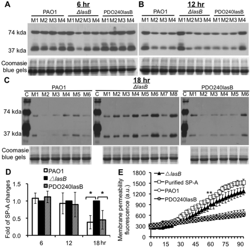 Elastase deficient Δ lasB mutant is attenuated in the degradation of SP-A during lung infection. (A-C) The amounts of intact <t>mSP-A</t> were not visibly changed at 6-hr (A) or 12- hr (B) post-infection. By 18 hr post-infection (C), intact mSP-A was reduced in the BAL fluid from PAO1- or PDO240lasB-infected SP-A +/+ mice (n = 6), suggesting that mSP-A was degraded in mouse lungs. In contrast, more abundant mSP-A was clearly visible in the BAL fluids from Δ lasB (n = 8). C = Purified human SP-A. M1 – M8 = BAL of mice infected with P. aeruginosa . Western blot analyses were performed using a <t>polyclonal</t> antibody against SP-A. (D) Densitometry analysis of mSP-A degradation by PAO1, Δ lasB and PDO240lasB in mouse lungs. The amounts of remaining mSP-A in Δ lasB were set to the value of 100%. * p