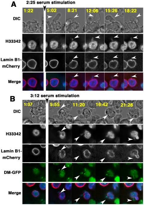 Time-lapse microscopy indicated that nuclear budding is coupled to cytoplasmic blebbing, which generates lamin-negative micronuclei. (A and B) The DNA in living COLO 320DM-GFP/lamin B1-mCherry cells was stained with Hoechst 33342 for time-lapse observation before and after fresh serum stimulation. The images were obtained at 3 min (A) or 5 min (B) intervals. The images corresponding to DM-GFP were omitted in A because the nuclear budding did not contain the DM-GFP signal. Elapsed time (in minutes:seconds) after the start of the experiment is shown in each image. White arrowheads indicate the cytoplasmic blebbing and nuclear budding.