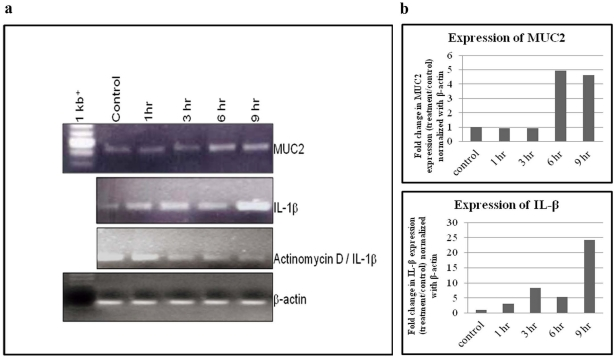 <t>RT-PCR</t> analysis of MUC2 and <t>IL-1β</t> expression in Shigella dysenteriae infected HT 29 cells. HT 29 cells were infected with Shigella dysenteriae for different time intervals. After infection, mRNA was isolated for MUC2 and IL-1β gene expression analysis as described in methods . HT-29 control cells showed basal level expression of both MUC2 and IL-1β. Whereas, higher level (intensity) expression of both MUC2 (∼4–5 fold higher for 9 h) and IL-1β (25 fold higher for 9 h) were seen in a time dependent manner upon HT-29 cells infected with S. dysenteriae . HT 29 cells pre-incubated with Actinomycin D (1 µg/ml) for 30 min, prior to S. dysenteriae infection, showed lower level of expression of IL-1β. The band intensity was measured by using image J program. Amplification of β-actin was used as an internal control.