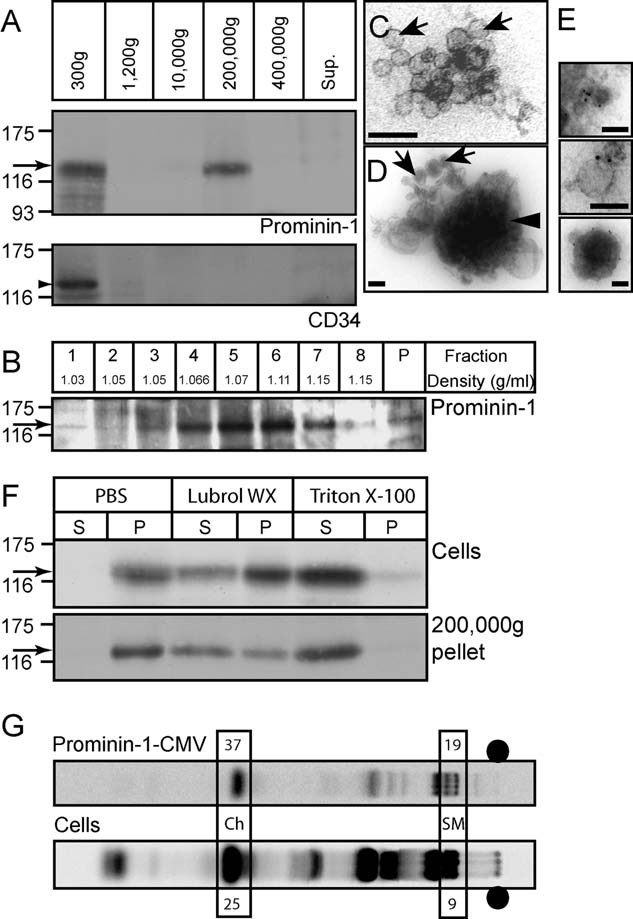 Association of prominin-1, but not CD34, with lipid raft-membrane vesicles released by HSPCs A. One-week-old co-culture HSPC/MSC conditioned medium was subjected to differential centrifugation for 5 min at 300 × g , 20 min at 1200 × g , 30 min at 10,000 × g , 60 min at 200,000 × g and 60 min at 400,000 × g . The resulting pellets were analysed by immunoblotting for either prominin-1 (top panel, arrow) or CD34 (bottom panel, arrowhead). Proteins in the 400,000 × g supernatant (Sup.) were analysed in parallel. B. The 200,000 × g pellet recovered after differential centrifugation (panel A) was subjected to equilibrium sucrose gradient (0.1–1.2 M) centrifugation. Equal volumes of the recovered fractions and the pellet were analysed by immunoblotting for prominin-1 (arrow). C,D. Negative EM analysis of the 200,000 × g pellet revealed the presence of small membrane vesicles (∼40–80 nm; arrows) and larger dense structures (∼200–600 nm; arrowhead). E. Negative staining EM of prominin-1 immunogold-labelled membrane vesicles recovered in the 200,000 × g pellet. Scale bars, 100 nm [(C–E)]. F. Haematopoietic cells (Cells) growing for 1 week in the co-culture system and 200,000 × g pellets (200,000 × g pellet) recovered upon differential centrifugation (panel A) were lysed for 30 min at 4°C in either 0.5% Triton X-100 or Lubrol WX or without detergent (PBS) and centrifuged for 60 min at 100,000 × g . The resulting supernatants (S) and pellets (P) were analysed by immunoblotting for prominin-1 (arrows). G. Lipid composition analysis of prominin-1-CMV was performed by C 14 -acetate labelling of HSPCs co-cultured with MSCs followed by TLC analysis of either haematopoietic cells (Cells) or the released prominin-1-positive vesicles recovered by a paramagnetic isolation with mAb CD133 (prominin-1-CMV). Percentages of cholesterol (Ch) and sphingomyelin (SM) of the total lipid composition are indicated. •, sample loading point.