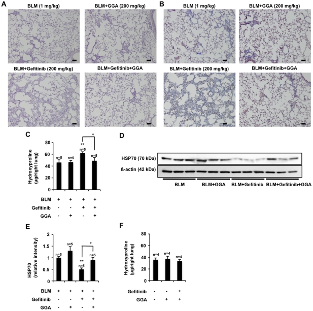 Effect of GGA on gefitinib-dependent exacerbation of pulmonary fibrosis and pulmonary expression of HSP70. Wild-type mice were orally administered gefitinib (200 mg/kg) and/or GGA (200 mg/kg) once per day for 3 days (from day 0 to day 2), then treated once only with 1 mg/kg bleomycin (BLM) (day 3). Mice were then orally administered gefitinib (200 mg/kg) and/or GGA (200 mg/kg) once per 2 days for 14 days (from day 3 to day 17). Sections of pulmonary tissue were prepared at day 17 and subjected to histological examination (H E staining (A) or Masson's trichrome staining (B)) (scale bar, 50 µm). The pulmonary hydroxyproline levels were determined at day 17 (C). Total protein was extracted from pulmonary tissues at day 17 and analyzed and expressed as described in the legend of Fig. 6 (D, E). Values are mean ± S.E.M. ** P