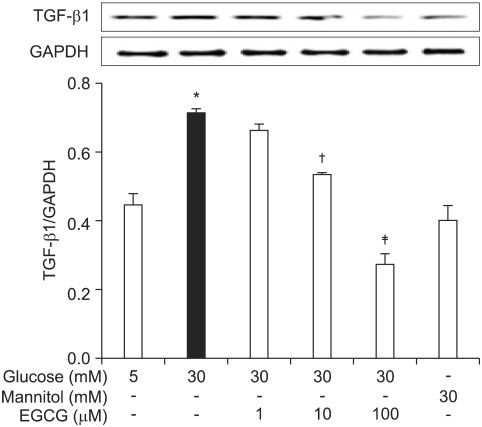 Effects of EGCG on the protein expression of <t>TGF-β1.</t> TGF-β1 and <t>GAPDH</t> expression was assessed by Western blotting with anti-TGF-β1 mAb or anti-GAPDH mAb, respectively. Results are shown in the top panels and quantified by densitometry (bottom panels). * p