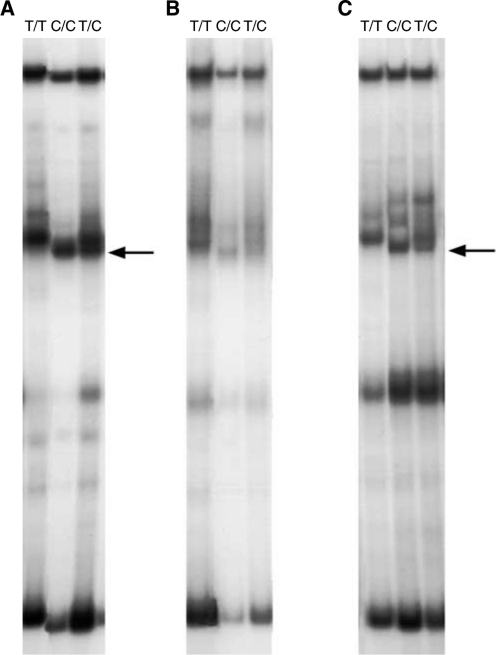 T1942C PCR-SSCP. Three DNA samples, 1942T/T (homozygous normal), 1942C/C (homozygous polymorphic), 1942T/C (heterozygous), were amplified with <t>AmpliTaq</t> Gold polymerase and AmpliTaq Gold buffer ( A ), Promega Taq and Promega buffer ( B ), Promega Taq and AmpliTaq Gold buffer ( C ) and with AmpliTaq Gold and Promega buffer (no PCR products obtained). All samples were amplified and SSCP-electrophoresed in the same experiment. Arrows point to the polymorphic SSCP fragment. Note that the polymorphic fragments are clearly visible only after amplification in AmpliTaq Gold buffer ( A , C ).