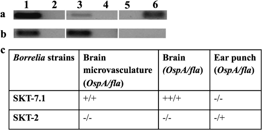 Presence of Borrelia and expression of OspA by SKT-7.1 and SKT-2 strains in rat tissues assessed by PCR. Panel a depicts detection based on PCR amplification of fla gene. Panel b depicts detection based on amplification of OspA gene. Detection of borreliae in the brain microvasculature of infected rats with SKT-7.1 (lane 1) or SKT-2 (lane 2); in the brain tissues (SKT-7.1 - lane 3; SKT-2 - lane 4); in the ear punch (SKT-7.1 - lane 5; SKT-2 -lane 6). Panel c - Expression of mRNA of OspA in borreliae was assessed by quantitative RT-PCR. fla served as housekeeping gene. + and ++ indicate expression levels of the gene, - depicts no expression.