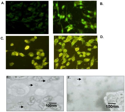Detection of the FMDV structure protein and FMDV capsid. Immunofluoresence was used to determine the expression levels of the FMDV structure protein following <t>transfection</t> with either pcDNA3.1(+) (a), pA (b) pB (c) or pC (d). FMDV capsid was observed by TEM of <t>BHK-21</t> cells transfected with pA (e) or pC (d).