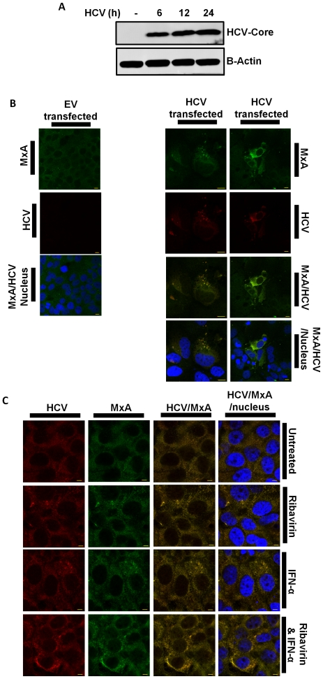 HCV core co-localises with MxA. (A) Immunoblot of lysates from Huh7 cells transfected with HCV-DNA construct for 0, 6, 12 and 24 h, probed with HCV core and β-Actin (n = 3). (B) Confocal micrograph of Huh7s transfected with EV or HCV-DNA construct (n = 3). (C) Huh7s transfected with HCV-DNA construct and treated with IFN-α for 2 h, Ribavirin for 2 h or both for 2 h (n = 4). Confocal micrographs show MxA, HCV core and the nucleus, labelled with Alexa 488, Alexa 568 and DAPI, respectively. Antibody staining is indicated along the side of images Bar, 10 µm (n = 3).