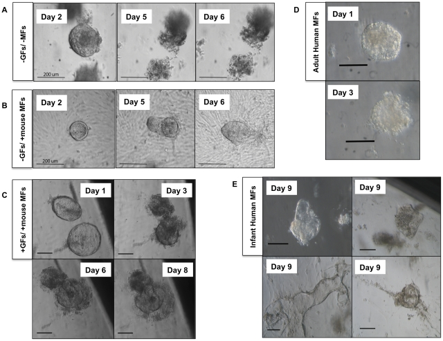 Supportive Effect of Wnt, FGF Growth Factors and Myofibroblasts on Human Epithelial Growth. (A) Human small intestinal crypts cultured without myofibroblasts (MFs) or growth factors (GFs) will live for approximately two days before dying off. (B) Human small intestinal crypts cultured in the presence of murine myofibroblast but without growth factors maintain their cystic shape indefinitely but without significant growth. (C) Human small intestinal crypts cultured with Wnt3a and FGF10 growth factors in the presence of mouse myofibroblasts began as simple cysts that fill and extruded their contents and became more complex in morphology over time. (D) Human epithelial clusters grown on adult human myofibroblasts in the presence of growth factors organize into simple cysts but cannot be maintained for longer than 3 days. (E) Infant human myofibroblasts are capable of supporting human intestinal epithelial growth into complex cystic structures through 9 days post-explantation. For A and B, scale bar is 200 µm. For C, D, and E, scale bar is 100 µm.