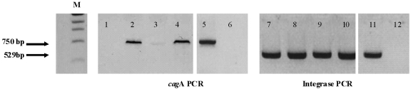 PCR detection of free circular phage DNA. To ensure complete elimination of bacterial genomic DNA, the DNA extracted from concentrated phage particles was treated twice with exonucleases (for 4 or 24 h) in order to digest any linear bacterial genomic DNA, leaving the circular DNA (i.e., phage DNA), which cannot be degraded by these enzymes. The extracted DNA was then tested for the presence of phage DNA and bacterial genomic DNA by PCR amplification of the phage integrase gene (using the primers F1, AAGYTTTTTAGMGTTTTGYG , and R1, CGCCCTGGCTTAGCATC , generating a 529-bp amplicon) and the cagA gene (750-bp amplicon) as already described ( 67 , 70 ). Lane M corresponds to the 1-kb DNA ladder (Promega). Lanes 1 and 7, B45 extracted phage DNA plus exonucleases, 24 hours; lanes 2 and 8, B45 extracted phage DNA plus exonuclease buffer only, 24 hours; lanes 3 and 9, B45 extracted phage DNA plus exonucleases, 4 hours; lanes 4 and 10, B45 extracted phage DNA plus exonuclease buffer only, 4 hours; lanes 5 and 11, B45 DNA (positive control); lanes 6 and 12, H 2 O (negative control).