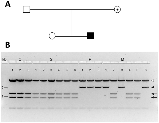 Detection of the c.194T > C variant in the HSD17B10 gene by RFLP analysis. The pGEM-T Easy vectors harboring the HSD17B10 gene cloned from genomic DNA of a normal control [ C1–3 ] (lanes 1–3), the patient's sister [ S1–6 ] (lanes 4–9), the patient [ P1–3 ] (lanes10–12), and the patient's mother [ M1–6 ] (lanes 13–18) were digested by BstE II and then separated on a 1% agarose gel. Amounts of DNA loaded were 1 mg on lanes 1 and 2, 0.75 mg on lanes 3 and 6, and 0.5 mg on all the other lanes. A 2.2 kb fragment (indicated by an arrowhead) results from an allele carrying this variant. For a wild-type allele, this fragment is chopped into two shorter fragments (1.3 kb and 0.9 kb) as indicated by arrows. The vector is in the largest band indicated by an empty arrowhead.