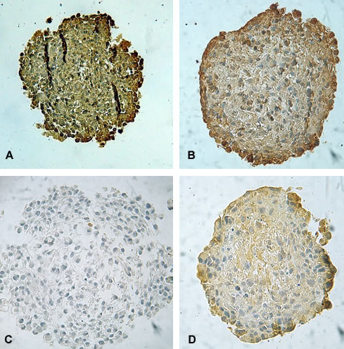 Representative photomicrographs of the p53 content evaluated by immunohistochemistry in UGBM1 human GBM spheroids (A); Hsp 70 content following 5 Gy irradiation in MO59J spheroids (B); EGFr contents in no-irradiated (control) (C) and 5 Gy irradiated MO59J spheroids (D) . EGFr antibody clone H11, recognizes wild-type EGFr and the deleted mutant form (EGFrvIII). Original magnification × 400.