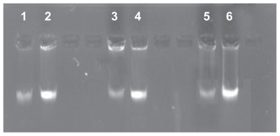 Effect of S-T-Gel on genome DNA of bacterial cells. Note: 2, 4, and 6 denote genome DNA of normal Staphylococcus aureus , Escherichia coli , and Pseudomonas aeruginosa cells respectively. 1, 3, and 5 denote genome DNA of S. aureus , E. coli , and P. aeruginosa cells treated with 10 μg/mL S-T-Gel respectively. Abbreviations: DNA, deoxyribonucleic acid; S-T-Gel, silver nanoparticles incorporated into thermosensitive gel.