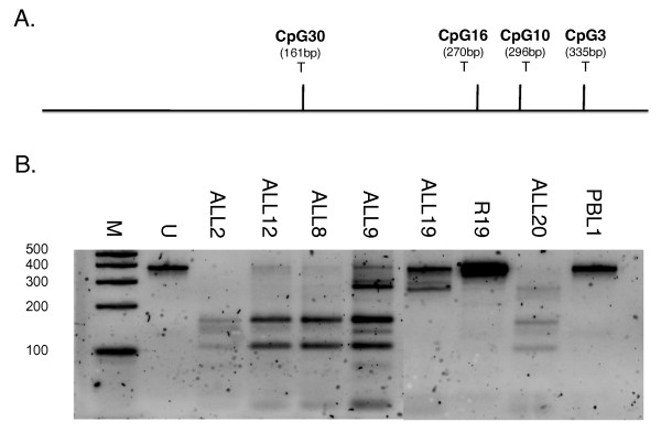 CoBRA of ALL bone marrow DNA . A . Diagram of reverse-strand bisulfite-specific PCR fragment showing location of potential Taq α I restriction sites (T). B . Taq α I digests of TES bisulfite-specific PCR products from normal PBL, ALL and remission samples. Fully methylated DNA will generate fragments of 161, 109, 26, 39 and 42 bp respectively. (Marker lane; 100, 200, 300, 400 and 500 bp bands; U - undigested PCR product).