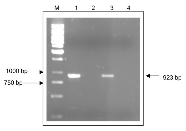 Amplification of VP1 genes of EV71 isolate S2/86/1 and isolate 410/4 by PCR . Lane M shows a 1 kb molecular marker (Fermentas). Lane 1 and lane 3 each shows a band of size 923 bp, which represent the PCR product of VP1 gene of EV71 isolate S2/86/1 and isolate 410/4, respectively. Lane 2 and lane 4 which show no band of PCR product are PCR negative controls that used water as template.