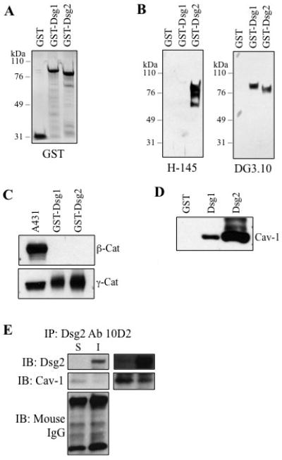 Cav-1 is a binding partner of desmogleins. ( A ) Coomasie staining of purified GST and GST fusion proteins with intracellular domains of Dsg1 (GST-Dsg1) or Dsg2 (GST-Dsg2). ( B ) Immunoblotting of GST, GST-Dsg1 and GST-Dsg2 using antibodies H-145 and DG3.10. H-145 recognized Dsg2 only, while DG3.10 recognized both Dsg1 and Dsg2. ( C ) These fusion proteins were used in a GST pull-down assay with A431 cell lysates. While A431 cells expressed both γ-catenin and β-catenin, Dsg1 and Dsg2 were able to pull down γ-catenin but not β-catenin. ( D ) GST pull-down assay with GST, GST-Dsg1 and GST-Dsg2 and A431 cell lysates, followed by Western blotting for Cav-1. Cav-1 was detected in the pull-down with Dsg1 and Dsg2 but not GST. ( E ) Immunoprecipitation assay further confirms that Dsg2 binds to Cav-1. Tx-soluble (S) and -insoluble (I) proteins were extracted from A431 cells and subjected to immunoprecipitation for Dsg2 (antibody 10D2). The precipitated products were immunoblotted for Dsg2 (Ab H-145), Cav-1 and mouse IgG (for equal antibody loading). Panels to the right are overexposed. I, Tx-insoluble; Tx, Triton X-100; S, Tx-soluble.