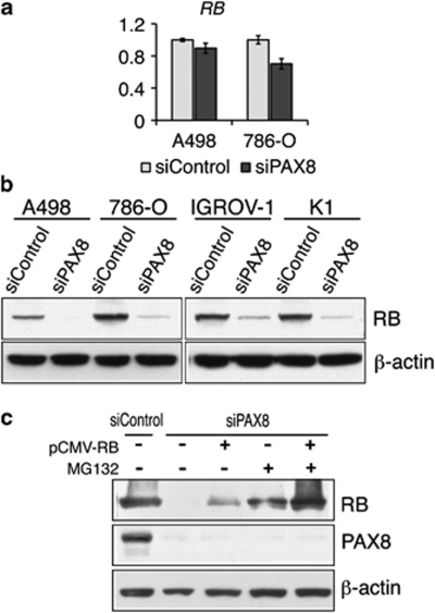 PAX8 is required for RB protein stability. The effect of PAX8 knockdown on RB expression at ( a ) the transcript and ( b ) the protein levels. ( a ) Total RNA was isolated from the indicated sample at 48 h post-transfection, and subjected to qPCR analysis. Gene expression levels were normalized to the expression of the housekeeping genes, PPIB and YWHAZ , and presented relative to the siControl-transfected samples. The data are means±s.d. of three independent experiments. ( b ) Whole-cell lysates were extracted from siRNA-transfected A498, 786-O, IGROV-1 and K1 cells at 96 h post transfection. The lysates were subjected to immunoblotting using the indicated antibodies. ( c ) Effects of proteasome inhibition on RB depletion in response to PAX8 knockdown. K1 cells were transfected with the indicated siRNA. After 24 h, cells were transfected either with a vector control (−) or with pCMV-RB (+). At 48 h post DNA transfection, the cells were incubated in medium with or without MG132 for 12 h. Whole-cell lysates were then extracted and subjected to immunoblotting using the indicated antibodies. qPCR, quantitative PCR; RB, retinoblastoma; siRNA, small interfering RNA.