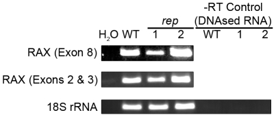 Analysis of RAX mRNA expression in the brains of rep mice. Total RNA was isolated from one WT and two rep mouse brains, treated with <t>DNase</t> and analyzed by RT-PCR with appropriate primers to measure the levels of the 5′ region (exons 1 and 2) and the 3′ region (exons 7 and 8) of RAX mRNA. 18S rRNA was measured as a loading control and –RT controls were used to ensure the absence of any genomic <t>DNA</t> in the RNA preparations.