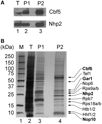 Purified S1-snR30 contains H/ACA proteins and a number of additional proteins. Proteins present in the extract (T), IgG eluate (P1) and streptavidin eluate (P2) were separated by SDS–PAGE and subjected to immunoblotting to detect Cbf5 and Nhp2 ( A ). In ( B ), the Criterion XT gel was silver-stained. Proteins identified by MS are indicated on the right. The molecular weights of protein markers (lane 1) are indicated on the left in kDa.