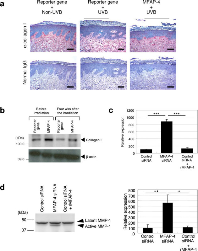 MFAP-4 over-expression prevents UVB-induced deterioration of collagen I. (a) Immunohistochemical analysis with a rabbit anti-human collagen I antibody or a non-specific control rabbit IgG was carried out using paraffin embedded sections from the xenografted skin treated with a lentiviral vector encoding a control reporter gene with or without continuous UVB irradiation for 8 wks and using xenografted skin over-expressing MFAP-4 with UVB exposure for 8 wks. Scale bars = 100 μm. (b) Western blotting analysis with an anti-human collagen I or an anti-human <t>β-actin</t> antibody to assess the protein levels of collagen I in xenografted skin treated with lentiviral vectors encoding a control reporter gene or MFAP-4 before and after UVB exposure for 4 wks. (c) NHDFs were transfected with siRNAs for non-specific sequences (Control) or MFAP-4 twice during the culture for 8 days. Control siRNA-transfected cells were treated with or without 10 nM human recombinant MFAP-4 during the culture. Quantitative RT-PCR analysis of the MMP-1 mRNA expression in cultured NHDFs was performed as described in the legend of Fig. 5a . The values reported represent means ± SD. ***p